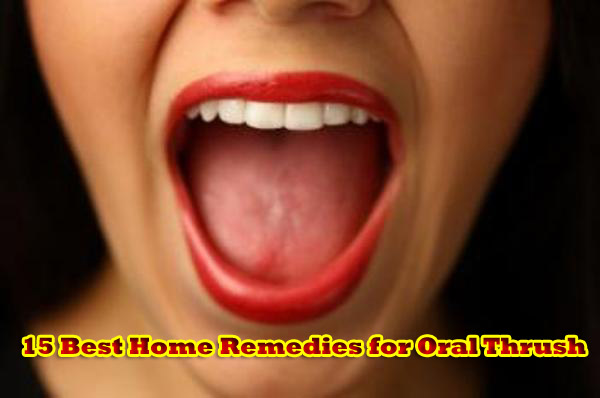15 Best Home Remedies for Oral Thrush