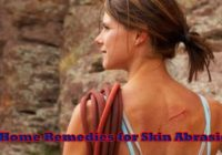 10 Home Remedies for Skin Abrasions