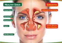 7 Useful Home Remedies for Sinuses