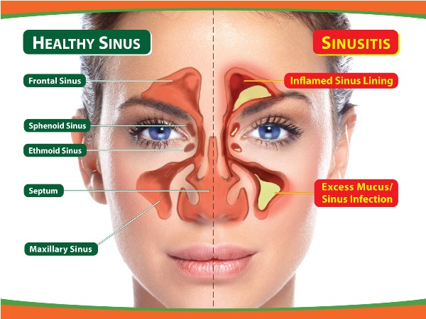 remedies for sinuses
