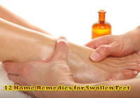 12 Home Remedies for Swollen Feet