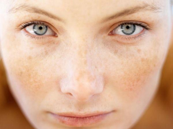 15 Home Remedies to Treat Melasma Pigmentation